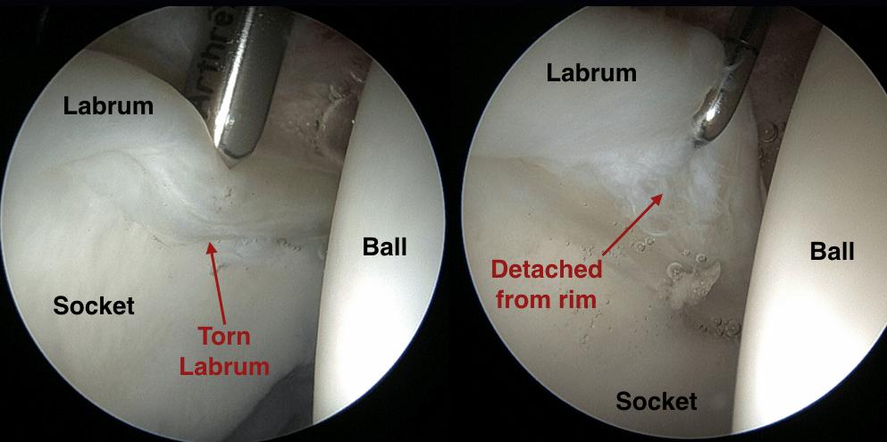Labrum Hip Injury Treatment
