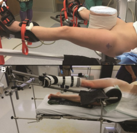 Intraoperative photograph demonstrating (A) supine and (B) lateral positioning for hip distraction utilizing a 10-inch perineal post. Both techniques achieve hip distraction by applying countertraction to the perineum.